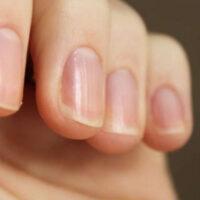 Что может рассказать форма ногтей