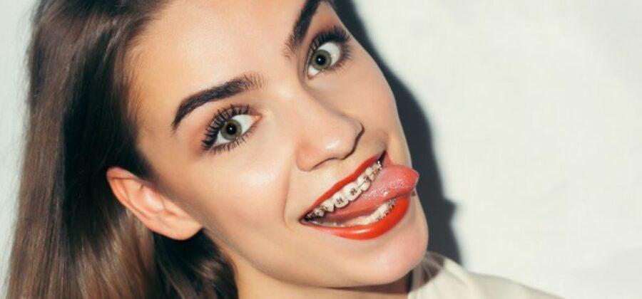 Ортодонтия: что следует знать об установке брекетов?